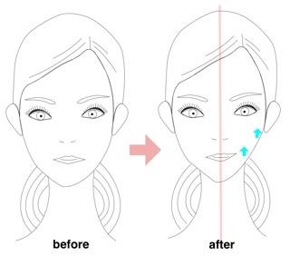 リュミエリーナ ヘアビューザー小顔効果の方の使い方(青山 表参道美容室ブルーフェーセス高森恭生のブログ)